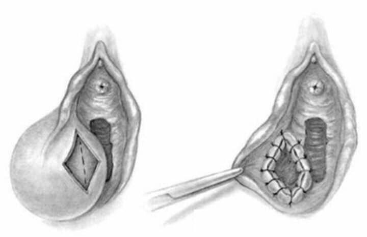 Marsupializarea chistului lui Bartholin